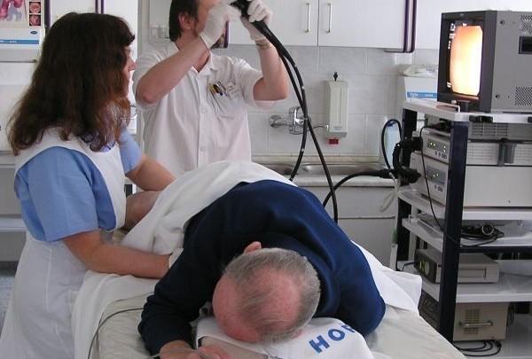 kolonoskopie