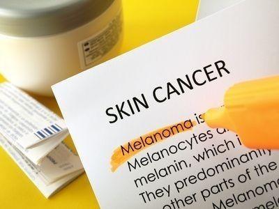 Rakovina kůže