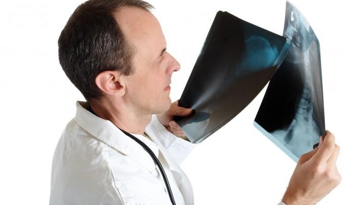 Lékař,rentgen,RTG,kosti,snímky- z HPV