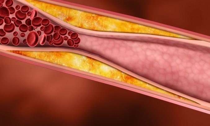 cévy s pláty