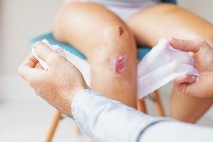 odřené koleno