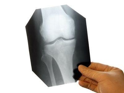 RTG,rentgen,koleno,lékař,doktor