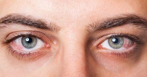 zarudle, červené, oko, oči, modré