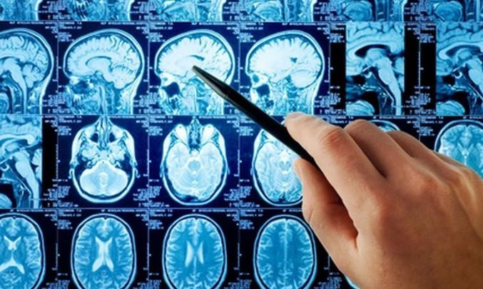 snímky mozku