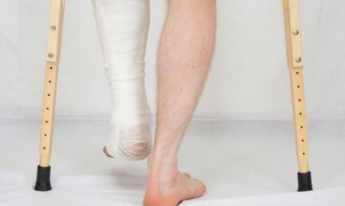 berle, zranění, obvaz, sádra, nohy, zlomenina,