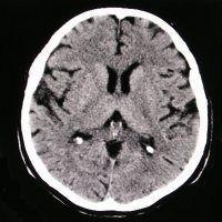 CT mozek