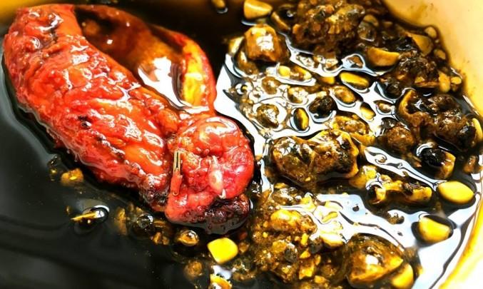 žlučníkové kameny
