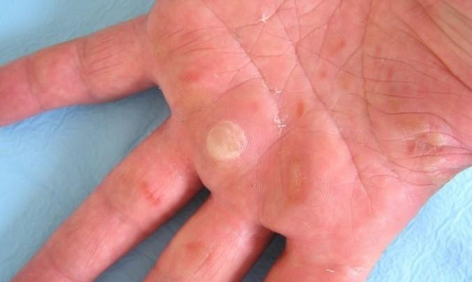 ruka, kůže, puchýř, popálenina