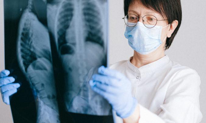 Lékařka se snímkem z rentgenu