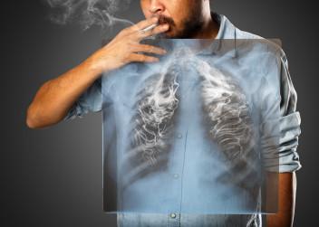 rakovina_plic_muz_koureni_cigareta