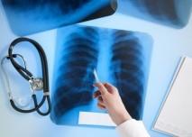 plice, lekar, rakovina