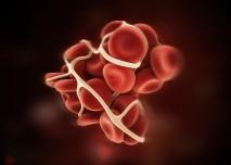 krevní sraženina