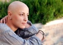 Žena bez vlasů