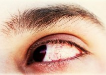 podrážděné oko