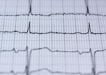 záznam činnosti srdce