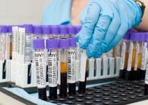 vyšetření krevních tuků
