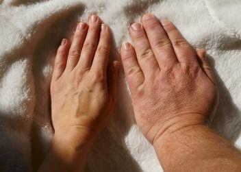ruce, velké ruce