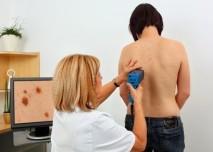 vyšetření, melanom, zhoubný nádor, rakovina kůže