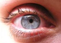 Oko,zánět spojivek
