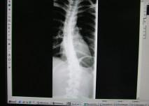 RTG,snímek,kost,kostra,zobrazení,zobrazovací metody