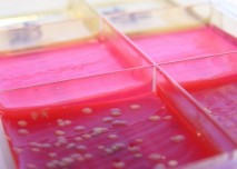 mikrobiologie, kultivace, půda, agar,
