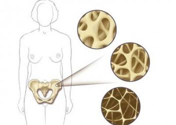 Osteoporóza, kosti, kostní tkáň