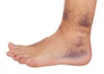 noha s modřinami
