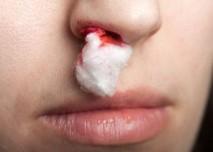 krvácející nos