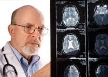 magnetická rezonance, MRI, lékař, radiodiagnostika, epilepsie, mozek