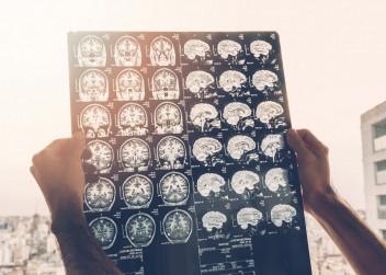 Magneticka_resonance_mozek_skleroza