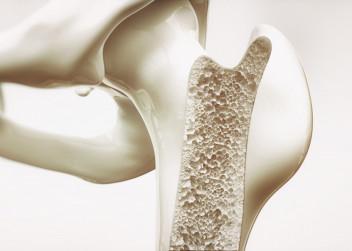 osteoporoza_kosti_nemoc_ridnuti_kosti