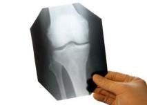 rentgen, snímek, kloub