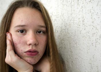 akné, žena, dívka, kůže