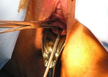operace, operatér, gynekolog,děloha, čípek děložní
