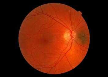 Oční sítnice