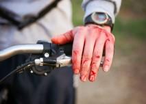 zranění na kole