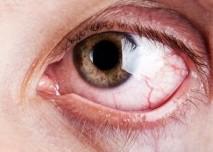 poraněné oko