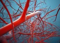 Nestárnou vaše cévy příliš rychle? Nechte si zjistit jejich věk!