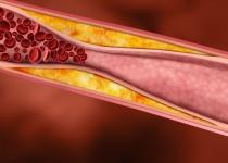 Co jsou aterosklerotické pláty a proč ohrožují naše zdraví?